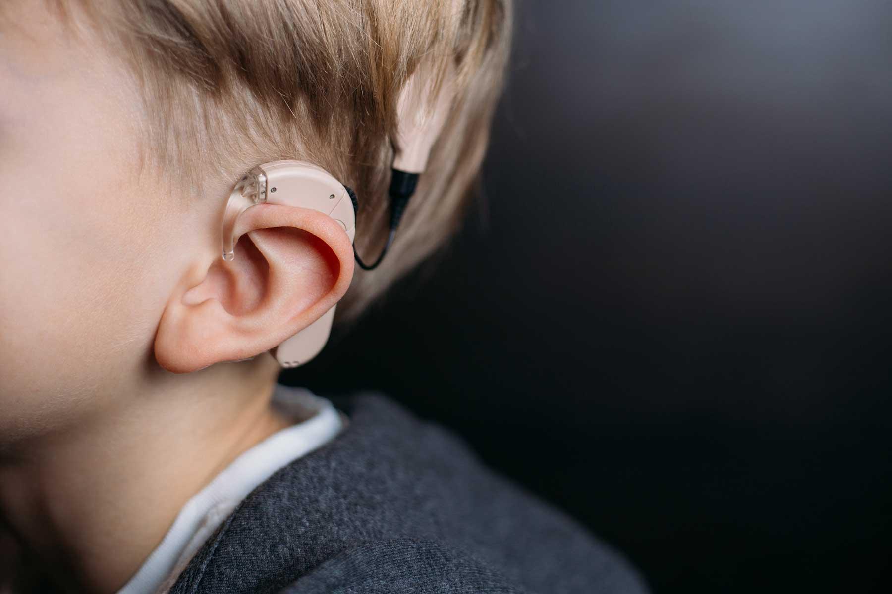 Mögliches Gerichtsurteil: Erzwungenes Cochlea-Implantat bei einem gehörlosen Kind