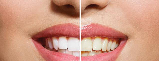 Resultado de imagen para dientes blancos