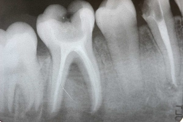 Root canals: The horrible truth revealed (tooth-organ chart)