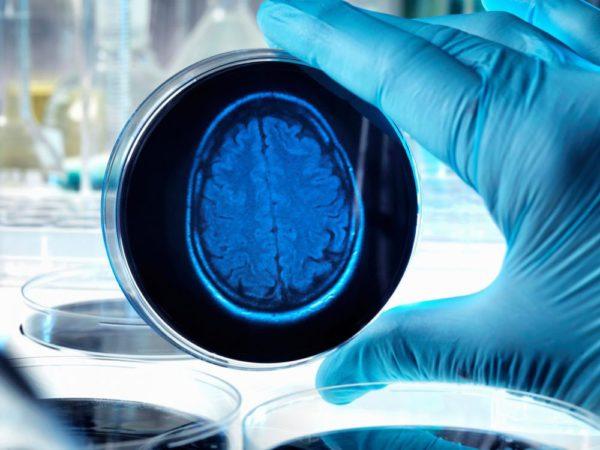 Light as medicine: flashing lights found to halt Alzheimer's disease