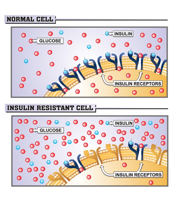 insulin resistance Sugar Watchers & Magic 7 Supplements