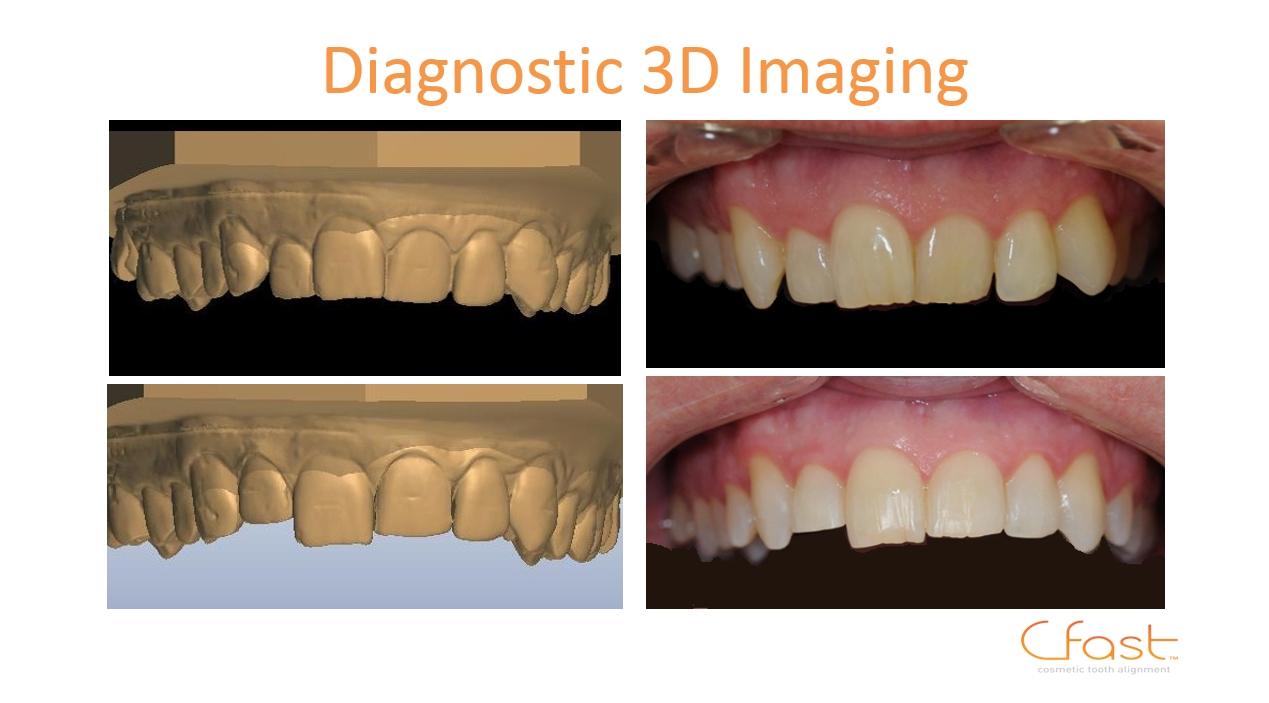 3D teeth brace Edinburgh
