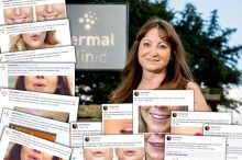 Hair and Beauty Digital Lips Campaign brings success to Dermal Clinic