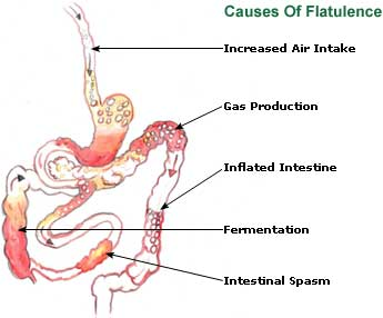 Flatulence Picture