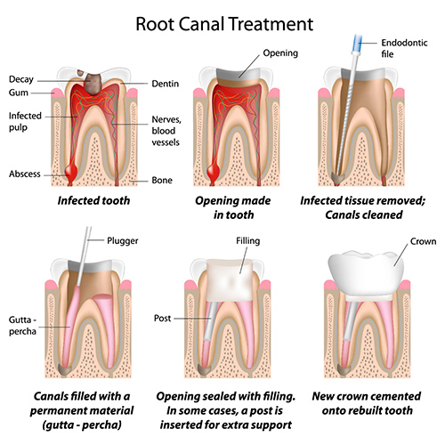 Root Canal Treatment Homebush
