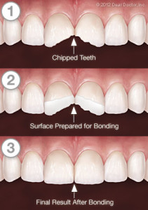 Tooth Bonding or Dental Bonding