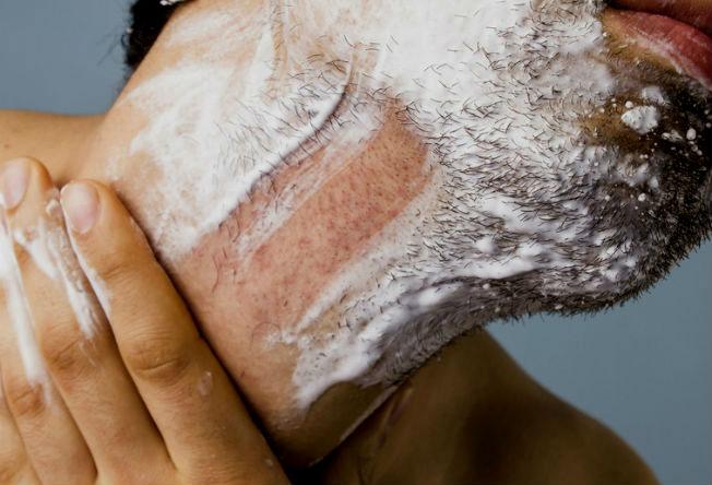 O fio de barba ou pelo encrava quando, ao nascer no folículo piloso, não consegue irromper na superfície da pele