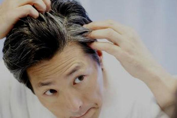 Homem No Espelho - 5 mitos sobre queda de cabelo-5