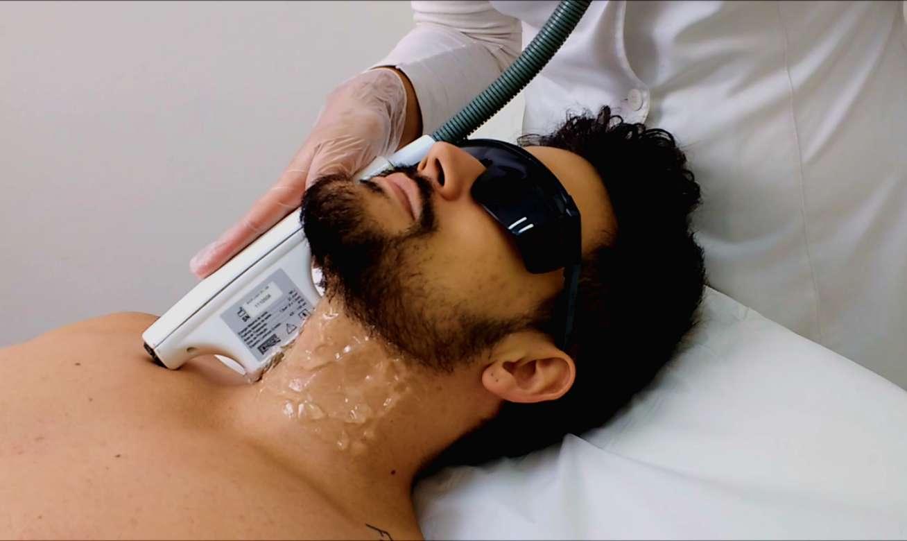 Homem-No-Espelho-Fotodepilação-da-barba- Luz pulsada
