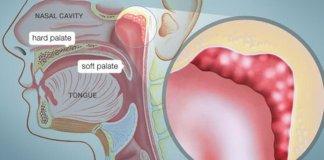 enlarged adenoids