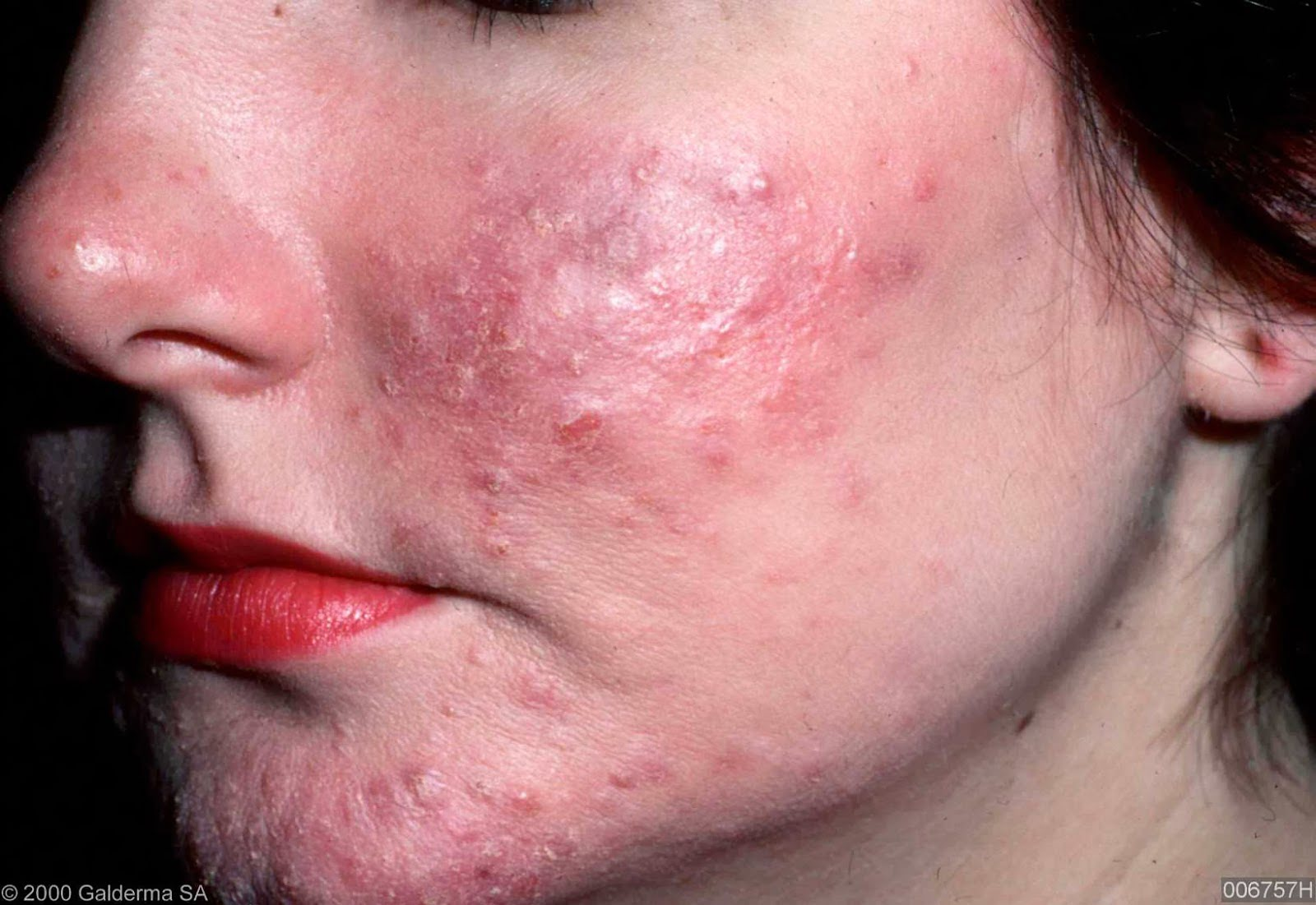 Acne Rosacea Natural Treatment Home Remedies
