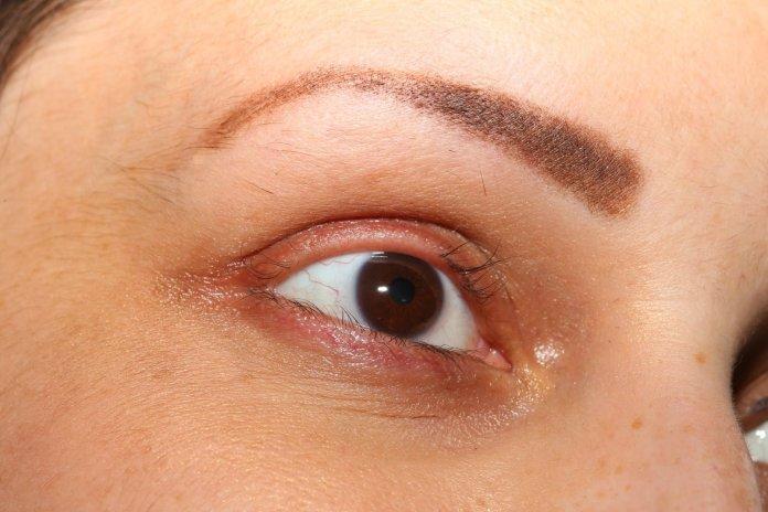 Natural cures for eyelash loss