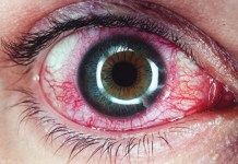 Iritis symptoms, causes and risk factors, Anterior uveitis