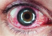 Iritis symptoms, causes and risk factors, Anterior uveitis