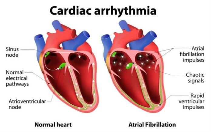 Natural Treatment For Arrhythmias