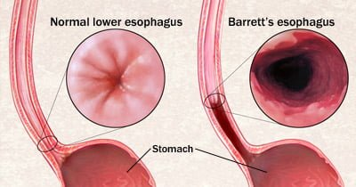 Natural cures for Barrett's Esophagus