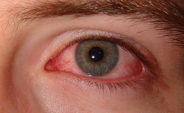 Natural cures for dry eyes
