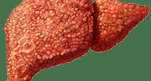 What Is Cirrhosis? Symptoms & Causes