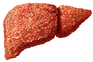 What Is Cirrhosis? Symptoms & Causes
