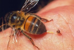 bee sting home remedy
