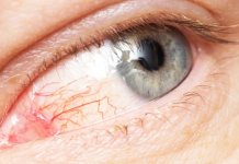 natural iritis treatment