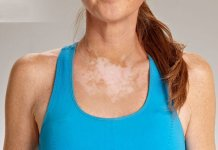 leucoderma (Vitiligo) natural treatment