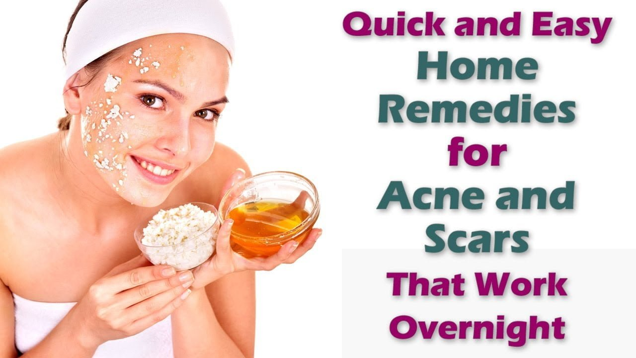 To Acne Treat Fast Home Remedies