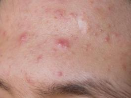 Natural cures for skin acne