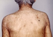 aplastic anemia home remedy