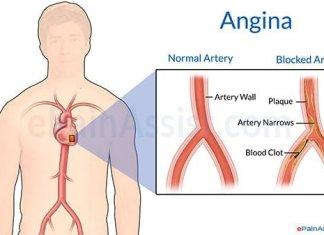 angina