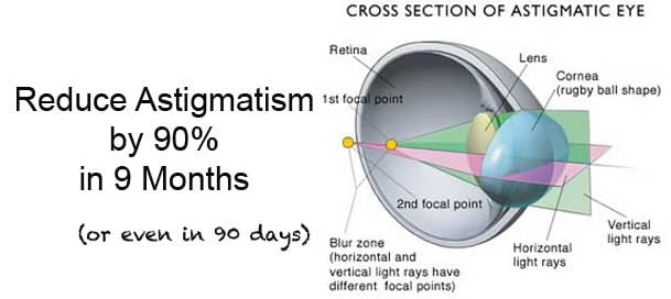 astigmatism home remedy