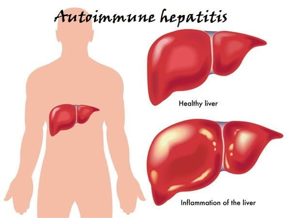 autoimmune hepatitis symptom