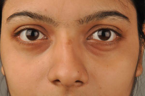 Image result for dark circles under eyes