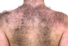 excess body hair