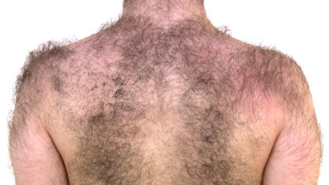 excess body hair
