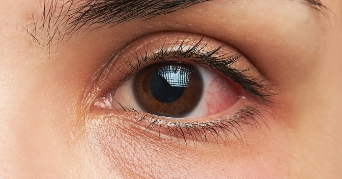 eye infection home remedy, Natural cures for eye infections