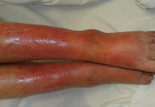 Natural cures for cellulitis