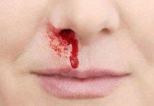 nosebleeds natural treatment