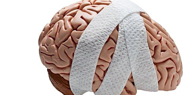 Concussion causes symptoms risk factors