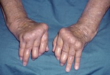 osteoarthritis treatment natural