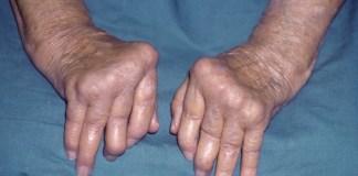 osteoarthritis treatment natural