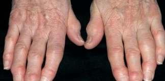 Osteoarthritis symptoms causes