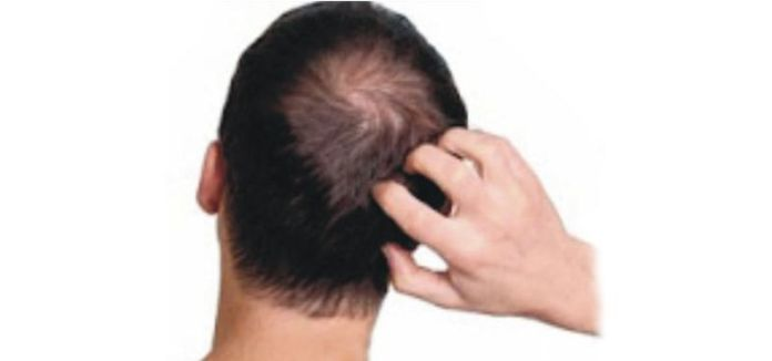 Natural cures for scalp ringworm, scalp ringworm home remedy