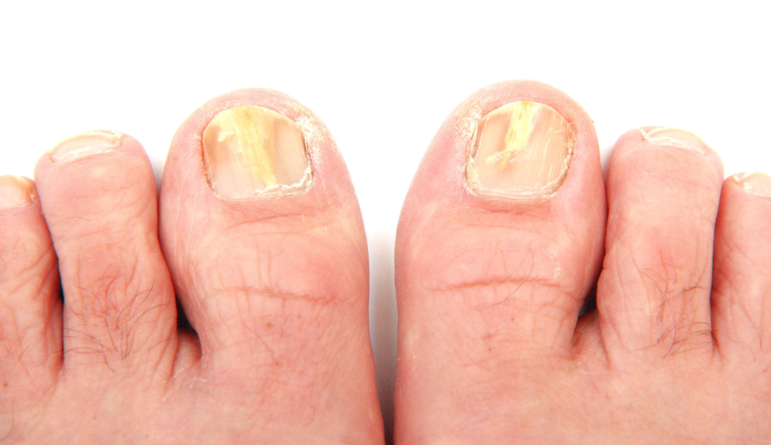 Nail fungus can be treated with turmeric and lemon juice Home