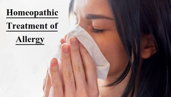 Homeopathic Medicine for Allergy Skin Treatment Without Side