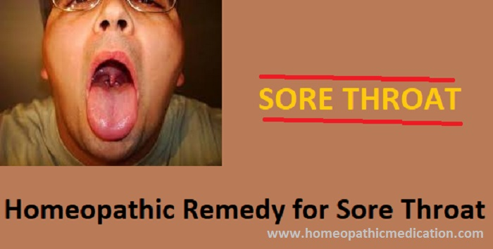 Homeopathic Sore Throat Remedies