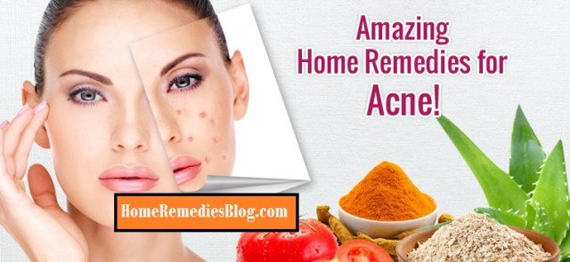 Acne Home Remedies