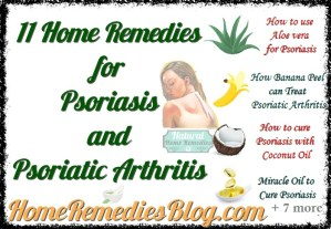 The Top 11 Home Remedies for Psoriasis and Psoriatic Arthritis