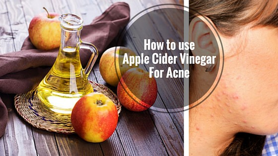 How to use ACV for Acne