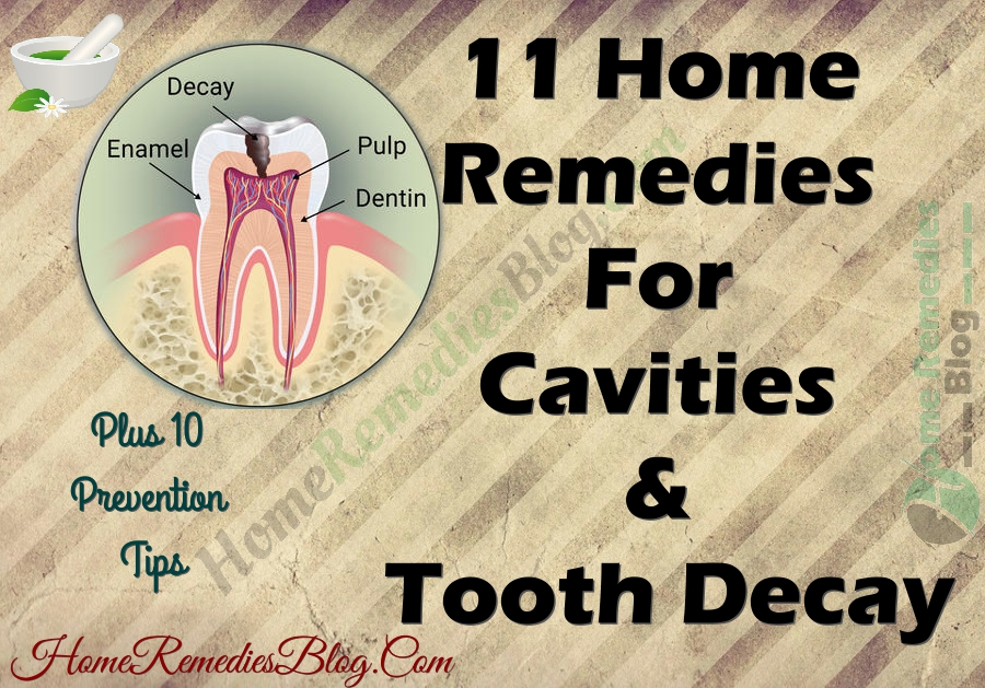 11 Home Remedies For Cavities & Tooth Decay